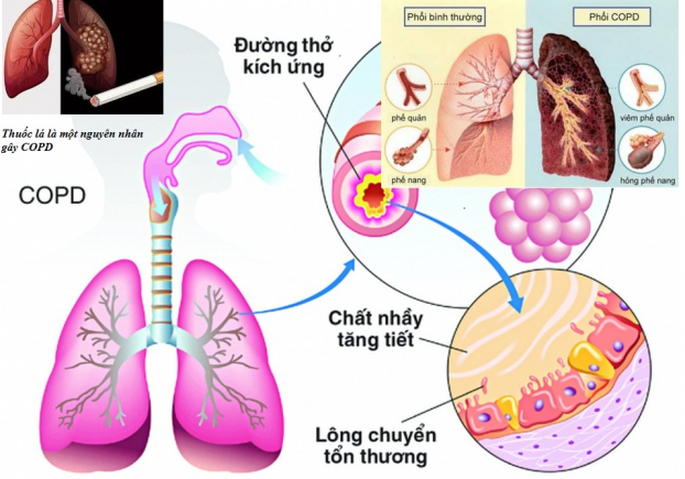 Bệnh viện Đa khoa Nông nghiệp ra mắt Câu lạc bộ Hen phế quản và bệnh phổi tắc nghẽn mạn tính (COPD)