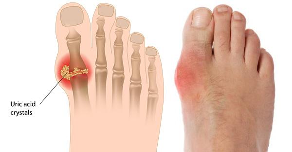 Chế độ dinh dưỡng trong phòng và điều trị bệnh Gút (Gout)